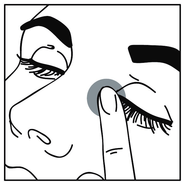 högt ögontryck huvudvärk