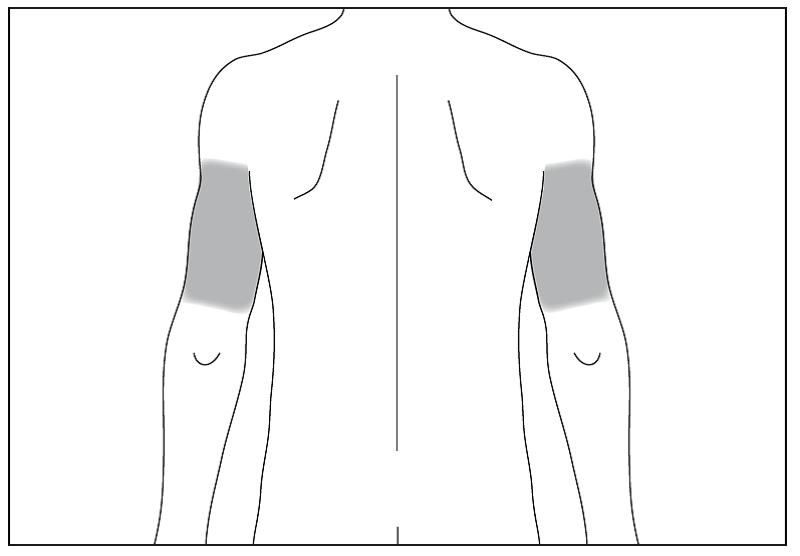 Bild 5. Om någon annan ger dig injektion, kan han eller hon även använda baksidan på dina armar.