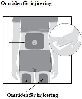 Områden som är lämpliga för injicering, mage och lår