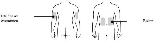 beskrivning av den själshättande injektorn-bild 4