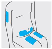 Bild av områden för injektionen
