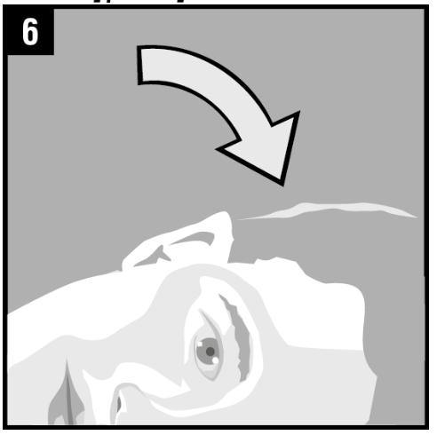 Figur 6
