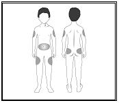 Bild på kropp framifrån och bakifrån.