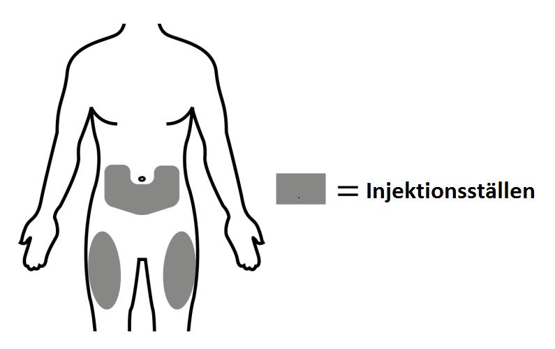 Injektionsställen