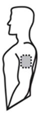 Placering vä överarm