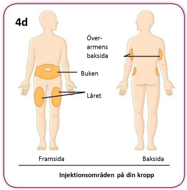 Bild på injektionsområden på kroppen