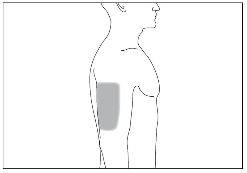 Bild 6. Om någon annan ger dig injektion, kan han eller hon även använda baksidan på dina armar.