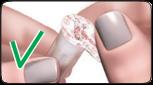Bilden visar ett nålskydd med bra försegling.
