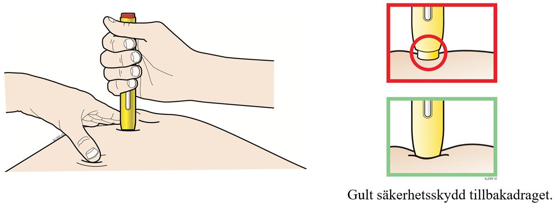 Bild visar hur pennan trycks mot huden