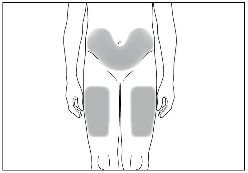 Bild 4. Det lämpligaste stället att injicera dig själv är högst upp på låret eller på buken utom området kring naveln.