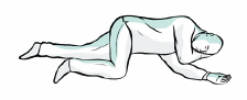Placera patienten i stabilt sidoläge