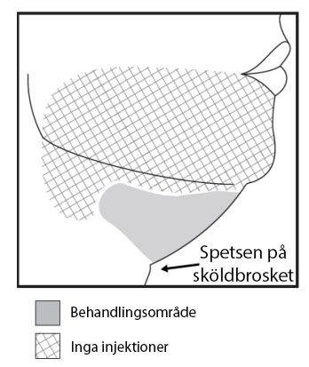 Undvik området kring ramus marginalis mandibularis