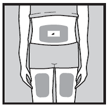 Bilden visar injektionsställen på mage och lår