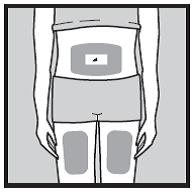 Bilden visar olika injektionsställen på kroppen.