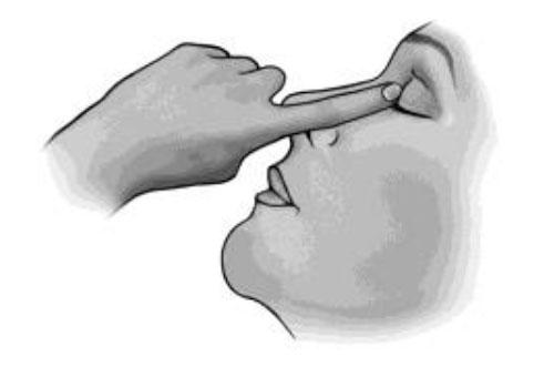 Ögondroppar4