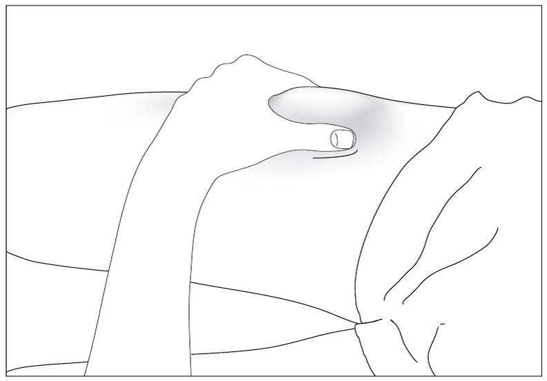 Bild 7. Desinficera injektionsstället på huden med en spritsudd och nyp ihop huden mellan tummen och pekfingret utan att klämma.