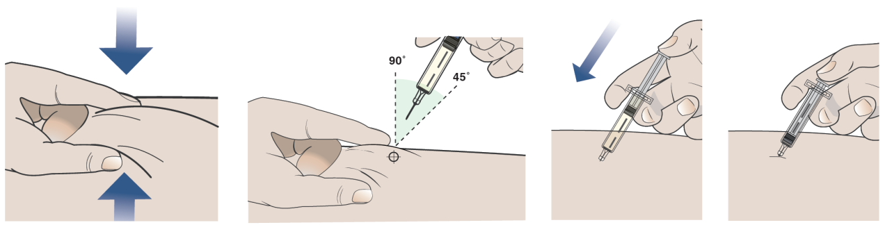 Injektion