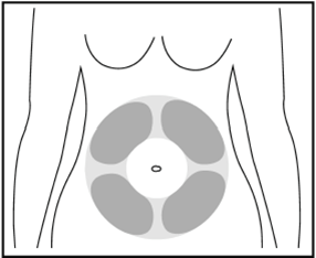 Bilden visar hur du förbereder injektionsstället för injektionen under huden