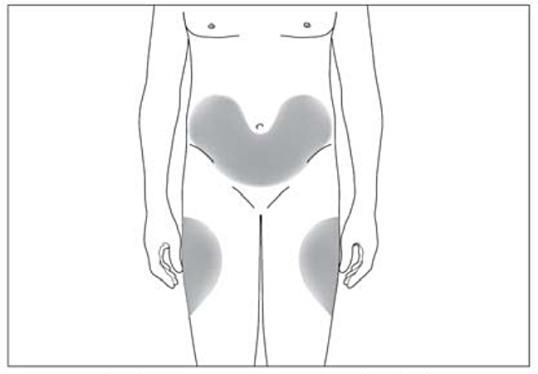 Bild beskriver var på kroppen injektionen kan ges.
