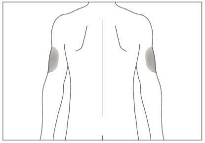 Bild beskriver hur injektion med hjälp kan ges på armens baksida.