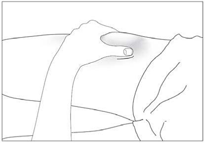 Bild visar hur huden nyps ihop innan nålen sticks in.