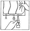 Bilden beskriver hur man kramar infusionsplsen och lösingen överförs från flaskan till påsen.