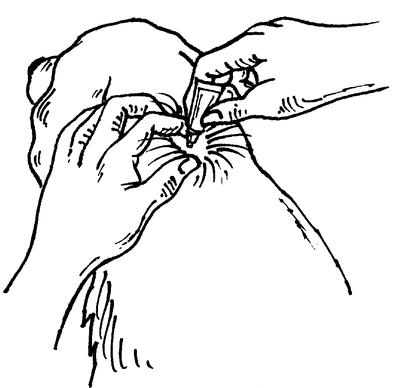Applicera mellan skulderbladen