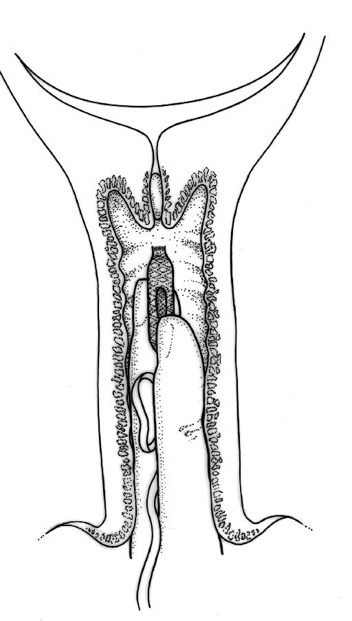 Införing av vaginalinlägg