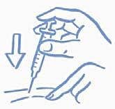 Figur A: Nyp försiktigt ihop huden och injicera enligt instruktionerna