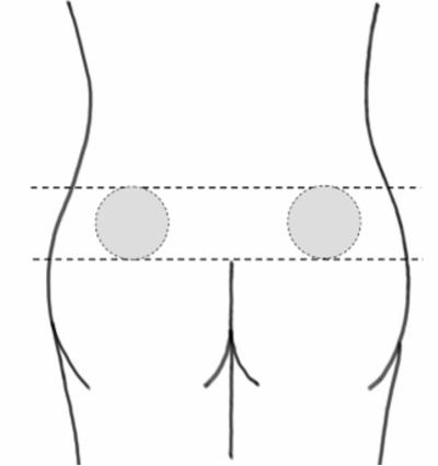 Bilden visar injektionsstället övre yttre kvadranten av skinkan