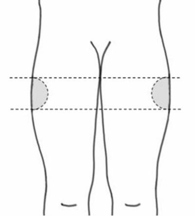Bilden visar injektionsstället övre yttre delen av låret