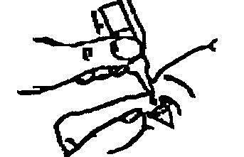 Bilden beskriver hur man ska dra det undre ögonlocket nedåt med ett finger och ta behållaren i den andra handen.