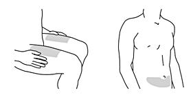 Figur 2 visar val av injektionsställe (framsidan av låren)