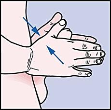8. Håll penis upprätt och utsträckt och massera i minst 10 sekunder för att läkemedlet ska spridas längs urinrörets väggar. Om du känner att det svider, massera i ytterligare 30-60 sekunder eller tills svedan avtar.
