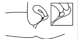 5. Crinone täcker slemhinnan i slidan och gör att progesteron frigörs långsamt.
