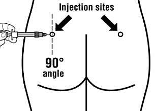 Injektionsplatser