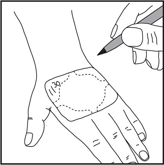 Det är enkelt att skriva tidpunkten när plåstret sattes på huden direkt på plåstret. (En kulspetspenna kan användas för detta ändamål.)