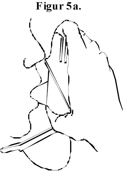 Figur 5a.