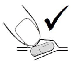 För att undvika sådana skador ska du trycka ut kapseln genom att trycka på blisterbubblans kant