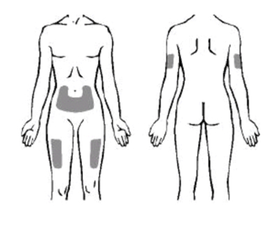 Bilden visar injektionsställen