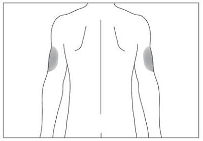 Injektionen kan även ges på baksidan av dina armar.
