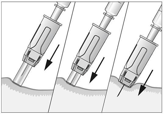 Bilden visar att nålskyddet dras tillbaka.