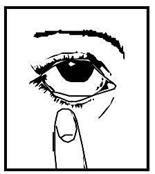 Luta huvudet bakåt och dra ner det undre ögonlocket så att en ficka bildas mellan ögonlock och öga.