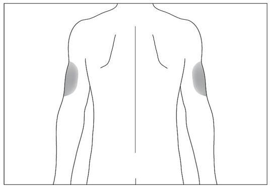 Om någon annan ger dig injektionen kan hon eller han också använda baksidan och utsidan på dina överarmar.