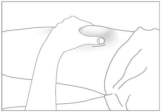 Desinficera injektionsstället på huden med en spritkompress och nyp ihop huden mellan tummen och pekfingret, utan att klämma.