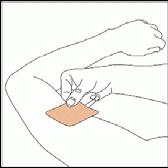 Placera den klibbiga sidan av plåstret mot huden