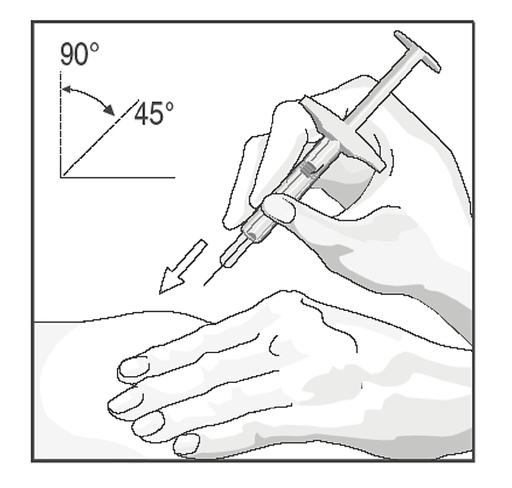 Bilden visar injektionsvinkel mot huden
