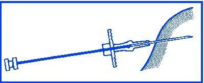 Lyft upp huden och för in kanylen ca 3 cm i underhudsvävnaden